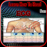 Learn How To Read ECG 5.1.3