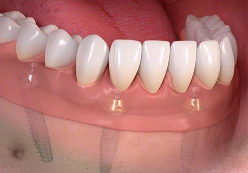 all on 4 dental implants Brooklyn NY