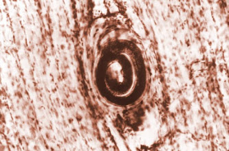Photo: Trichinella encysted in skeletal muscle