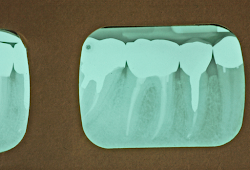 X-rays of a patients teeth