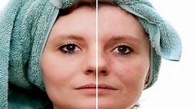 How to Remove Age Spots on Face - Dark Spots On Skin