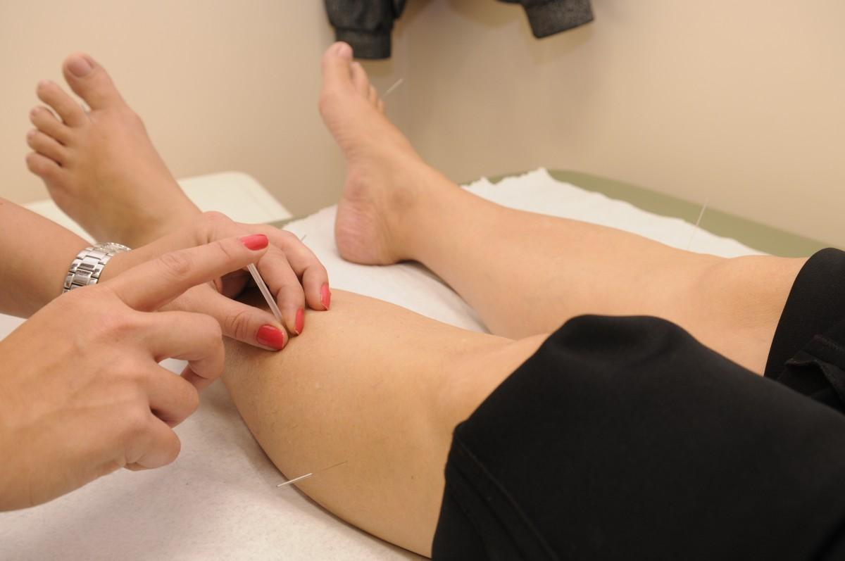 leg, foot, arm, muscle, chest, human body, thigh, therapy, treatment, acupuncture, physical therapy, sense