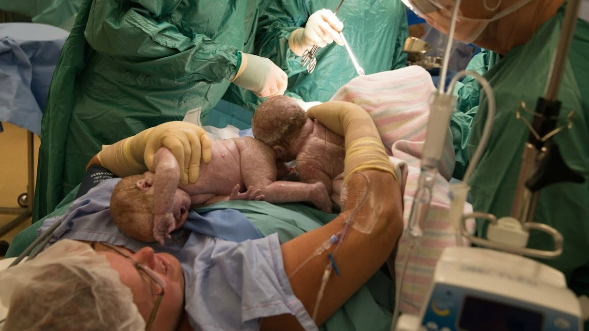 Incredible Moment: Mom Delivers Her Own Twins During C-Section