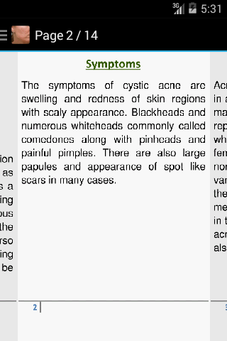 Acne Scar Removal Home Remedy  screenshots 2