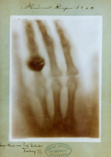 X-Ray of Anna Bertha's hand.