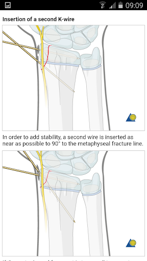 AO Surgery Reference 1.2.6 screenshots 7