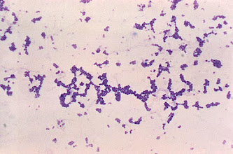 "Photo: Staphylococci, Gram stain, ""grape clusters"""