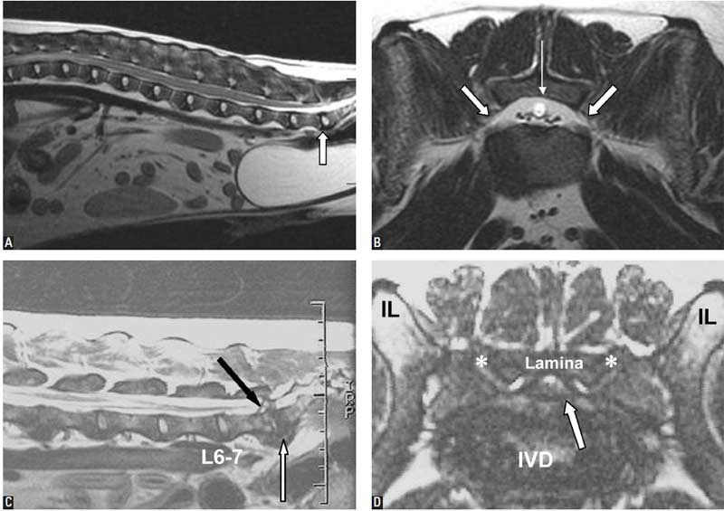 MRI images of a dog with a normal lumbosacral junction and from a dog with degenerative lumbosacral disease