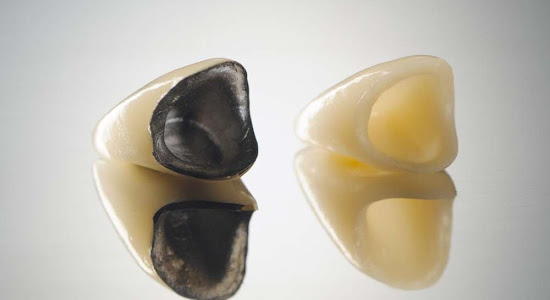 ceramic dental crowns that mimick natural teeth well