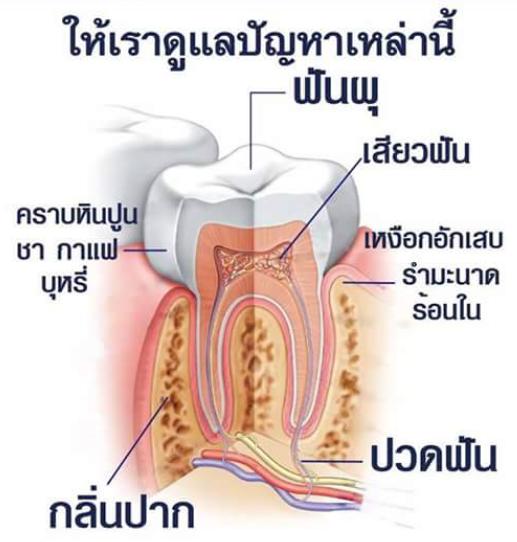 ยาสีฟันสมุนไพร 1ทิพย์สยาม ยาสีฟันสมุนไพรทิพสยาม ยาสีฟัน ๑ทิพสยาม แก้ปัญหาเหล่านี้ ฟันผุ เสียวฝัน เหงือกอักเสบ รำมะนาด ร้อนใน คราบหินปูน คราบชา-กาแฟ กลิ่นปาก และ การปวดฟัน