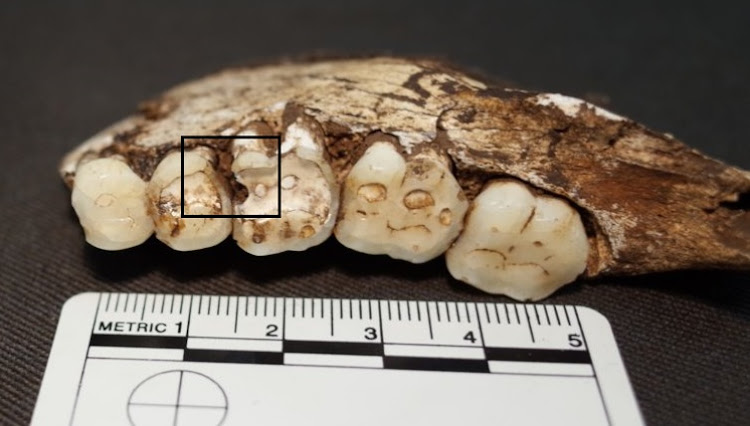 Carious lesions on the mandibular right second premolar and first molar. Homo naledi (UW 101-001).