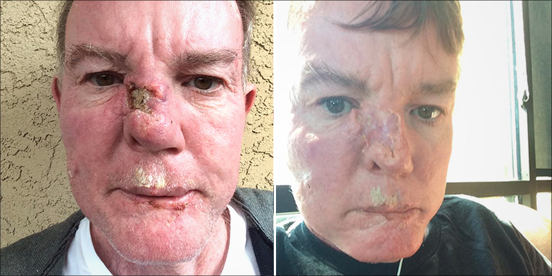 THIS MAN BEAT SQUAMOUS CELL CARCINOMA SKIN CANCER WITH CANNABIS OIL