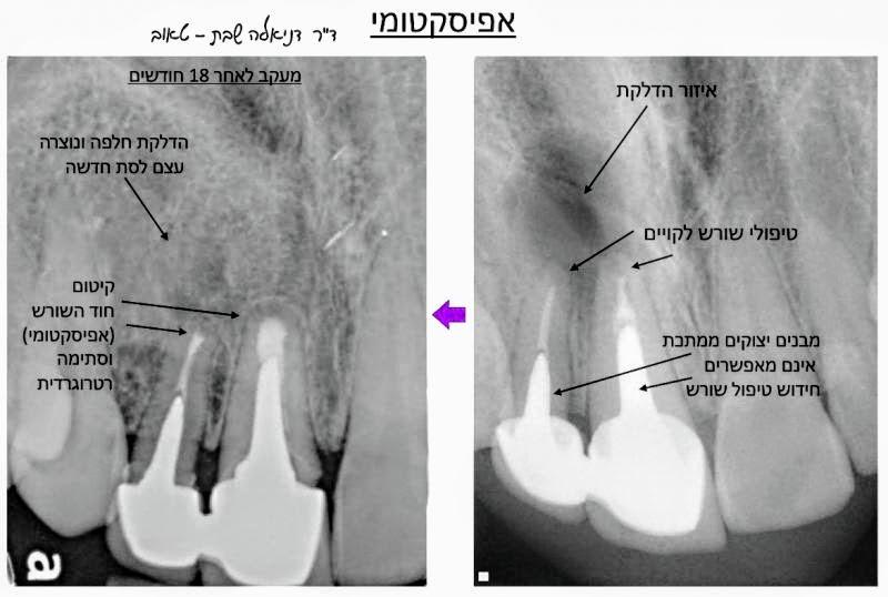 """קיטום אנדודנטיה טיפולי שורש כירורגייה רפואת שיניים שיקום הפה - ד""""ר גיא וולפין"""