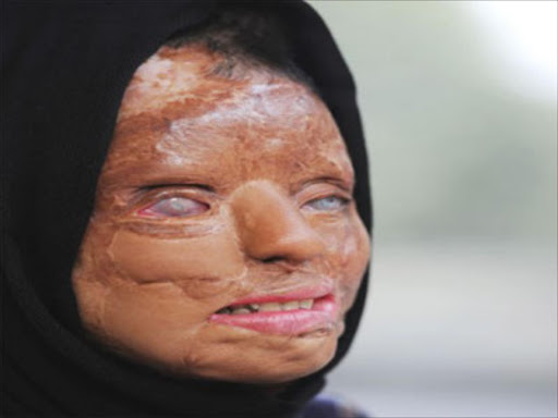 India acid attack victim became a TV millionaire