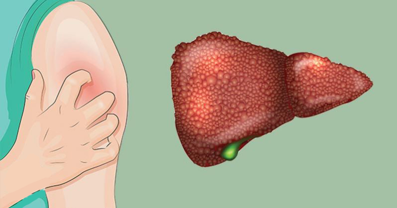 Bruise easily? Itchy skin? 5 signs you have liver damage without even knowing it