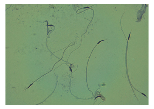 C. ravus ravus spermatozoa stained with 40X hematoxylin. A middle piece folded in the upper part is seen, a folded tail to the left, and a flagella folded on itself below, forming an eight.