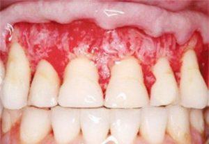 Tẩy trắng răng có hại không - Bác sĩ tư vấn - Nha khoa Bally 1