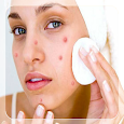 Get Rid of Acne (Guide)
