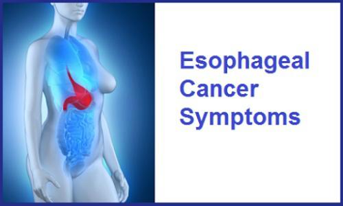 Esophageal Cancer Symptoms screenshot 0