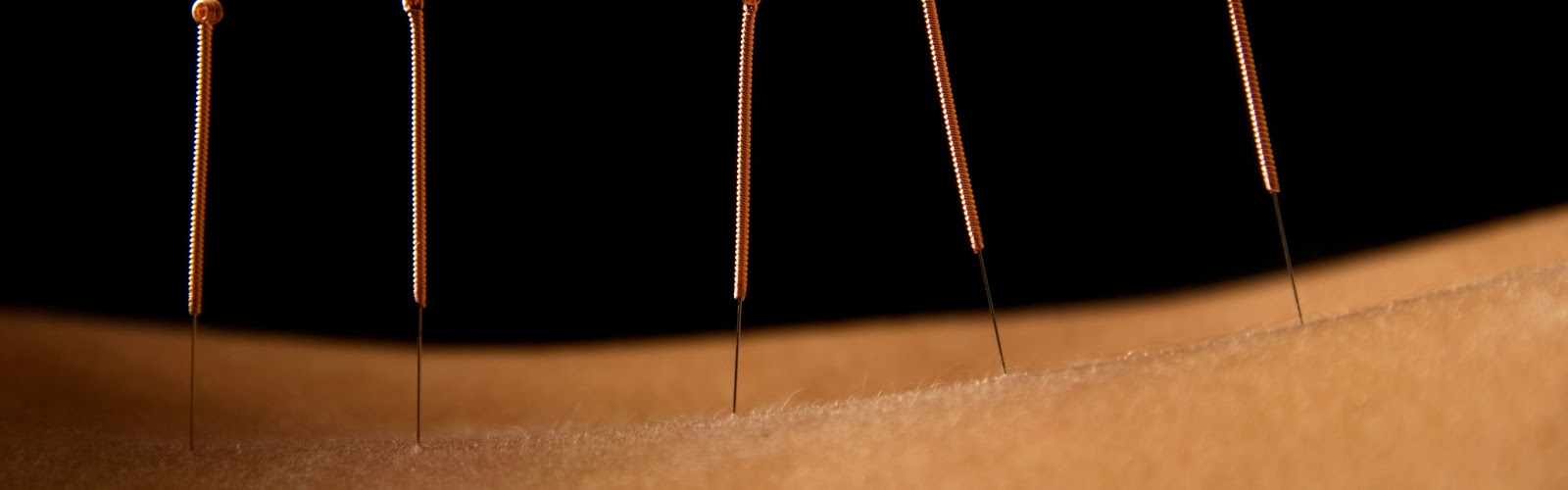 four needles stuck in the back of a patient