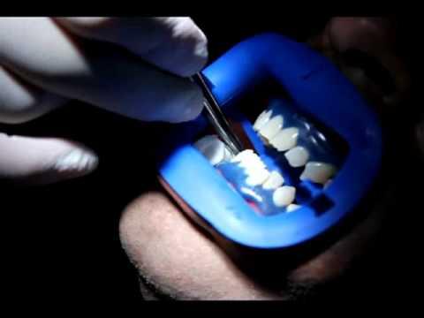 Làm trắng răng ở đâu tốt - Chia sẻ từ người có kinh nghiệm?