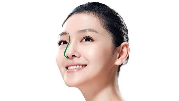 Phương pháp nâng mũi này mang lại dáng mũi cao ráo, mềm mại, đẹp tự nhiên