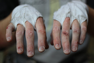 Photo: Ian's hands got a bit battered up from the day's crack climbing.