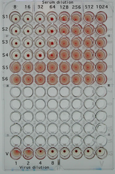 Haemagglutination inhibition (HI) assay showing 6 serum samples with titres of 32 (S1, S2 and S3), 16 (S4) and <8 (S5 and S6). The virus (V) is back-titrated to confirm that the correct standard dose (4 haemagglutinating units) is used.