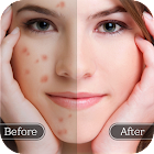 面部瑕疵卸妆 - 光滑的皮肤和美化面孔 icon