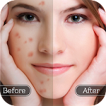 Face Blemish Remover - Smooth Skin & Beautify Face Icon