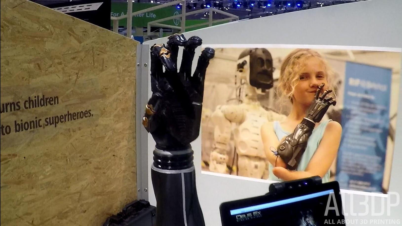 Начинается первое в мире клиническое исследование 3D-печатных бионических рук для детей
