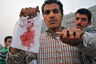 """Photo: """"This is what our army is doing to the Egyptian people!"""" shouted the protesters."""