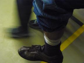 De voet van Philip