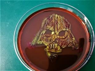 EMB + E.coli IPP