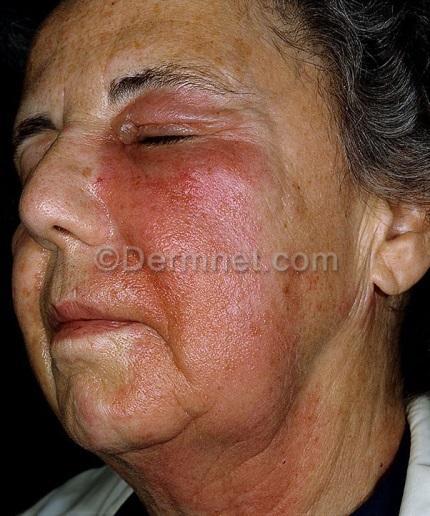 C:\Users\1\Desktop\cosmetic-fragrance-allergy-6.jpg