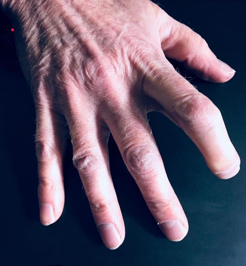 C:\Users\Boyers\Desktop\PHOTOS 2018\Finger II.jpg