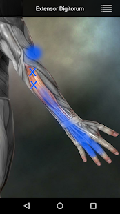 Muscle Trigger Point Anatomy- screenshot thumbnail