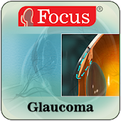 Glaucoma (An Overview)