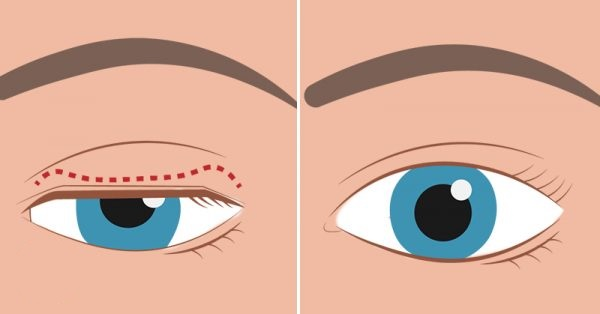 Tips to Get Rid of Sagging Eyelids and Get a Gorgeous Look
