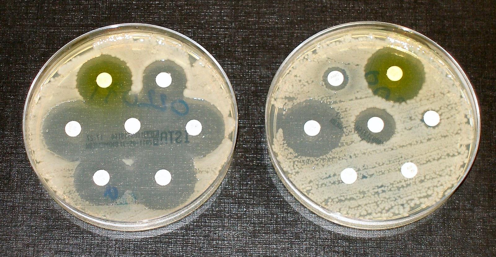 Bacteria antisusceptibility