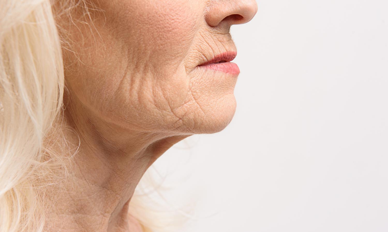 rimpels verminderen gezicht, hals, decolleté, handen. Botox, fillers, peelings Dr. Charlotte Nelissen, Hasselt, Bilzen, Tongeren, Maastricht.