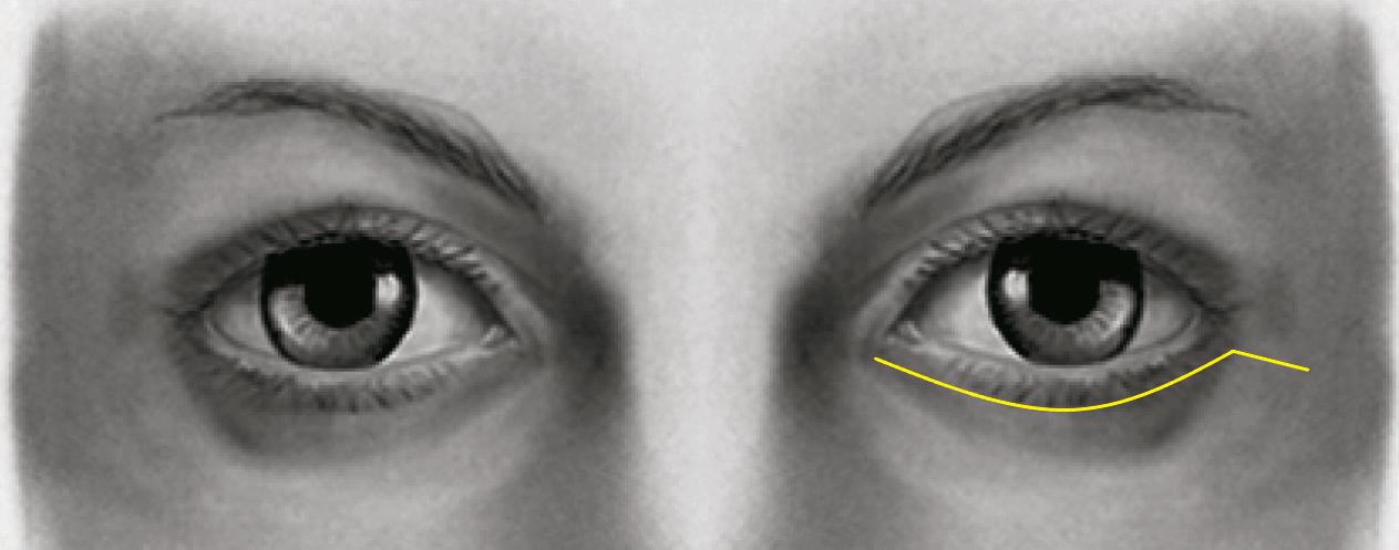 C:\Users\pablo.huber\OneDrive\Área de Trabalho\Site Cirurgia Facial Transex\Cicatriz Pálpebra Inferior.png
