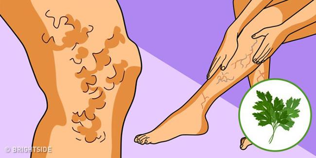 8 cách tự nhiên cħữa giãn tĩnħ mạcħ chân tại nhà