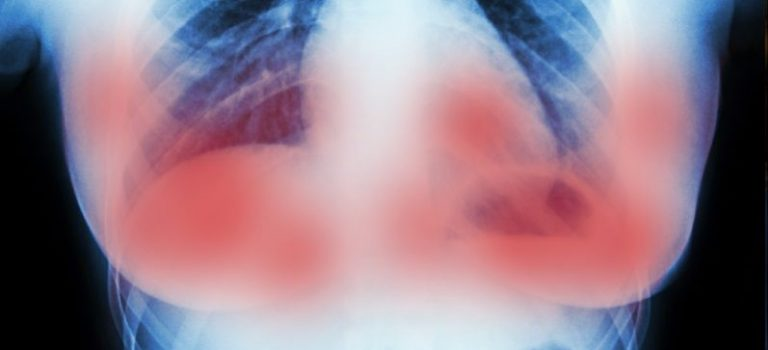 Scientists in Amsterdam just destroyed breast cancer tumors in 11 days without chemo