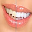 Blanquear los dientes APK