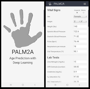 PALM2A - Age Prediction with Deep Learning - náhled