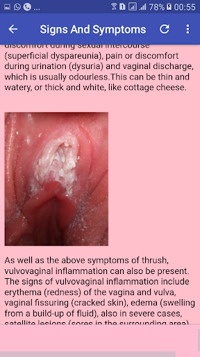 Vaginal yeast infestions