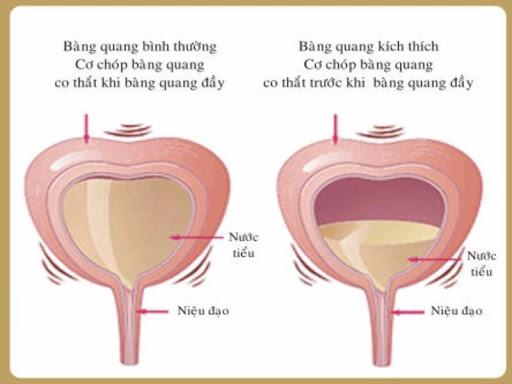 Viem bang quang anh huong den sinh san nhu the nao 01