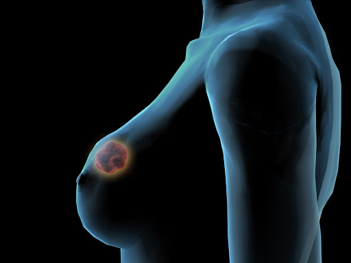 Breast cancer breakthrough