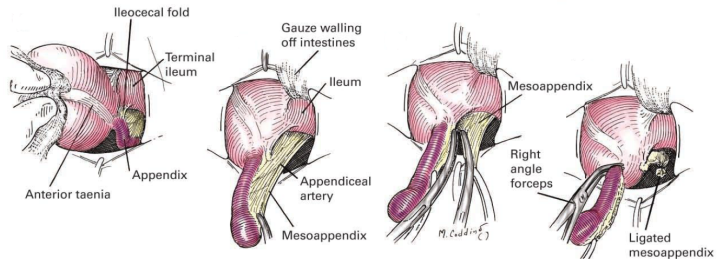 Ligadura da artéria apendicular e dissecção do mesoapêndice. Retirado de: Zollinger's Atlas of Surgical Operations (8).